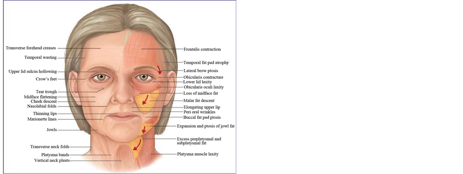 A Guide to Cheek Augmentation: Single-Point Deep Injection