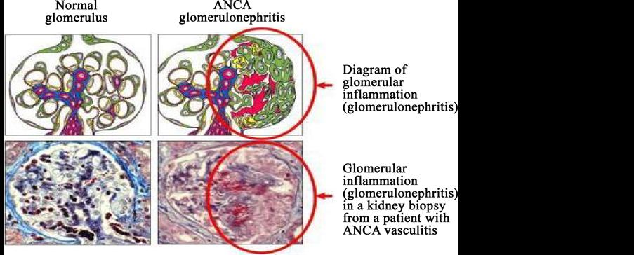 anti glomerular basement membrane disease alan d salama and charles