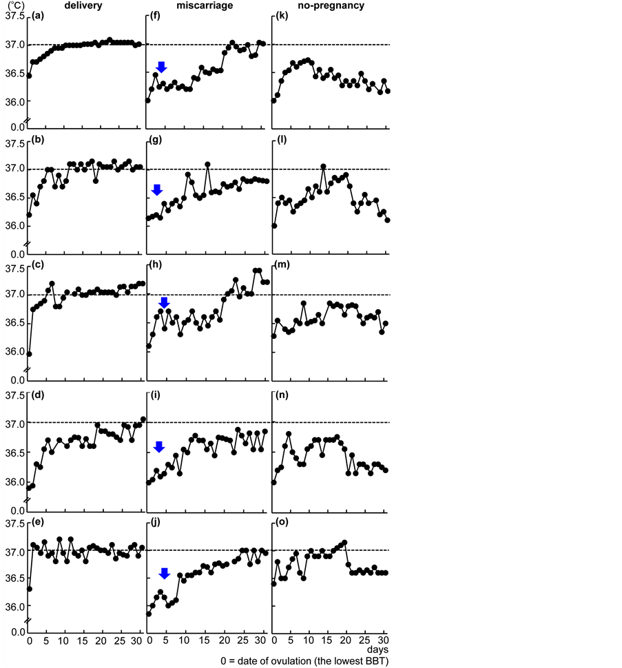A Specific Pattern In The Basal Body Temperature Chart