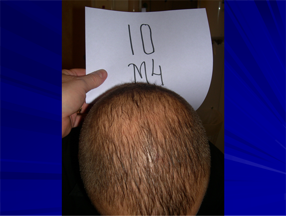 The Effect of A100 Gel, on Hair Growth and Hair Quality ...