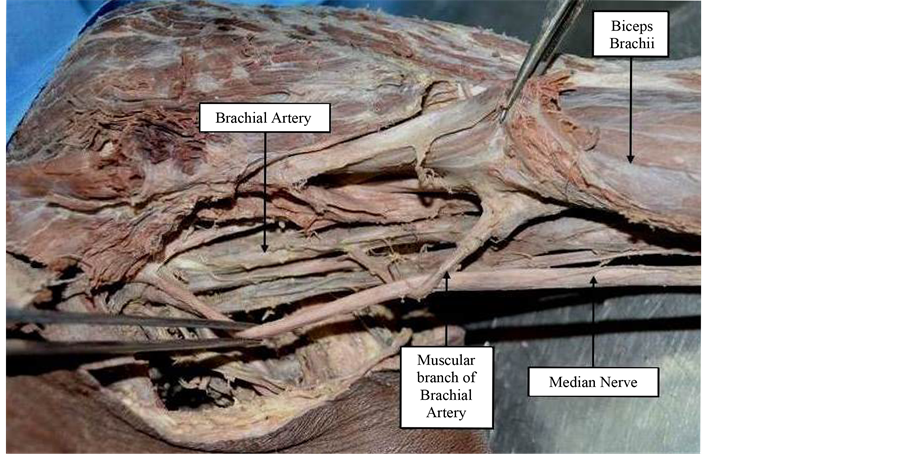 Entrapment Of The Median Nerve By A Muscular Branch Of The Brachial