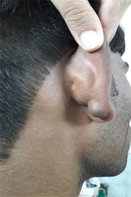 Epidermoid Cyst of the Auricle: A Common Cyst at a Rare Site