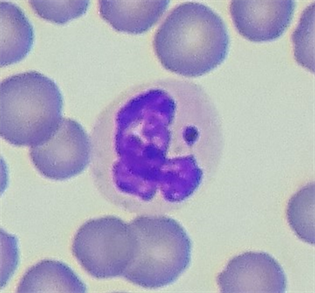 Sex Chromatin In Peripheral Blood Neutrophils And Sex