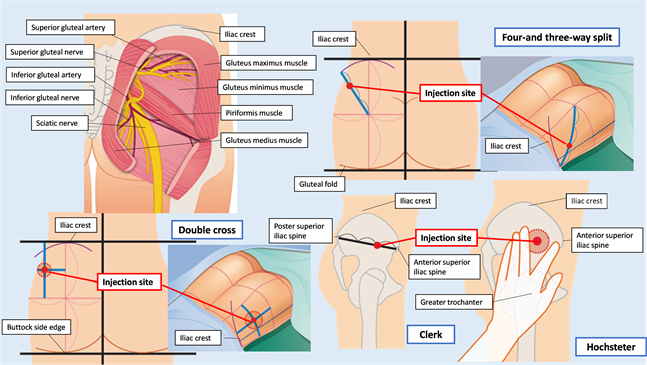 Image Result For Safety Of Muscle