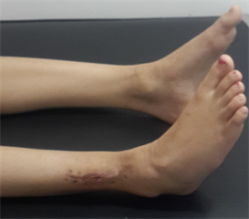 Tendon Transfer For Foot Drop A Simple Procedure With Effective