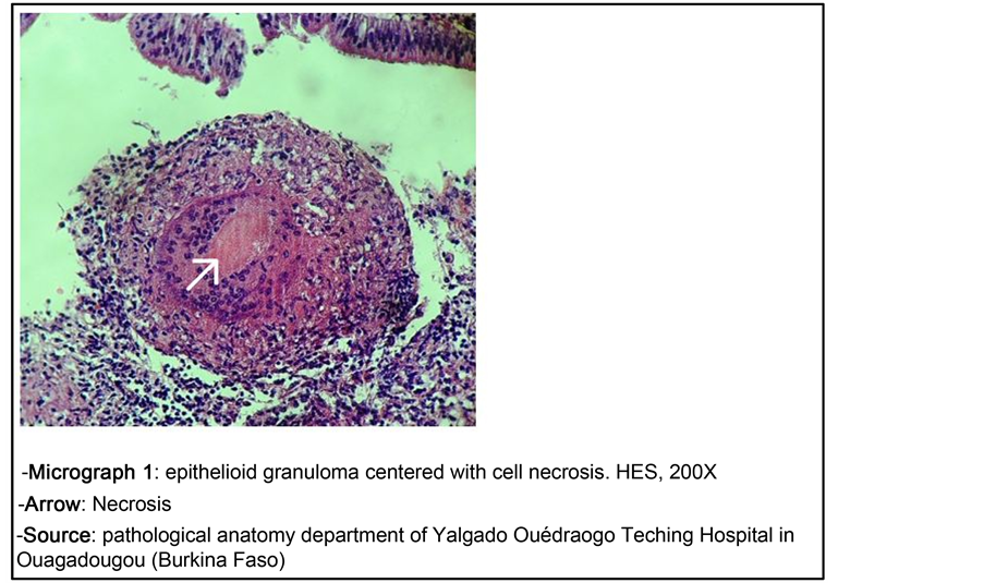 Tuberculosis Of The Uterine Cervix About A Case And Literature Review